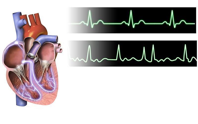 Atrial Fibrillation ECG